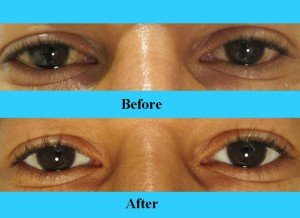 How To Make Your Sclera Whiter Naturally
